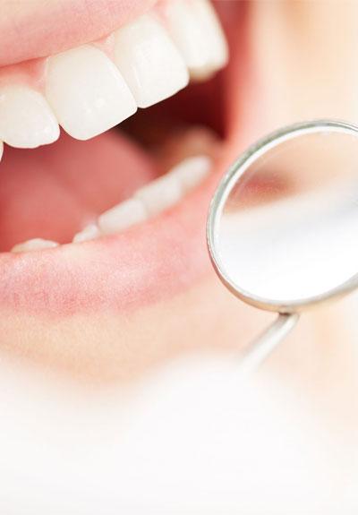 odontologia pamplona preventiva