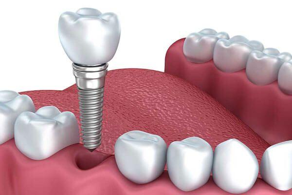 Implantes dentales precios Pamplona