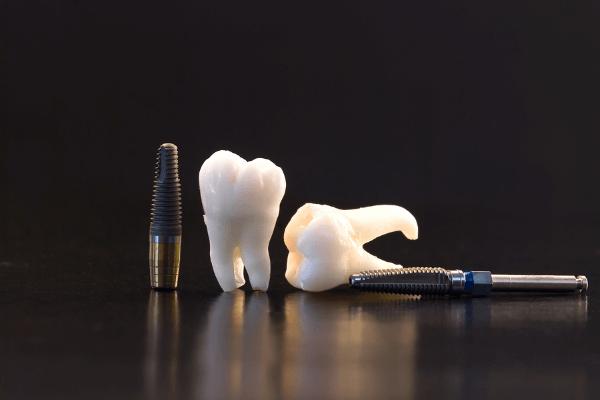 precio implante dental