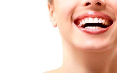 Blanqueamiento dental precios Pamplona