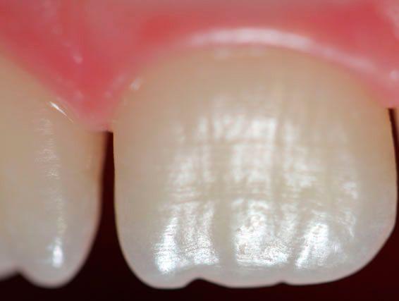 dentistas especialistas en pamplona