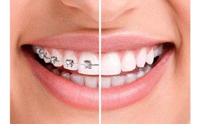 Tipos de ortodoncia: Encuentra tu tratamiento ideal