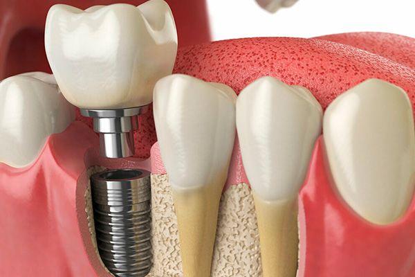 Implantes Dentales Proceso
